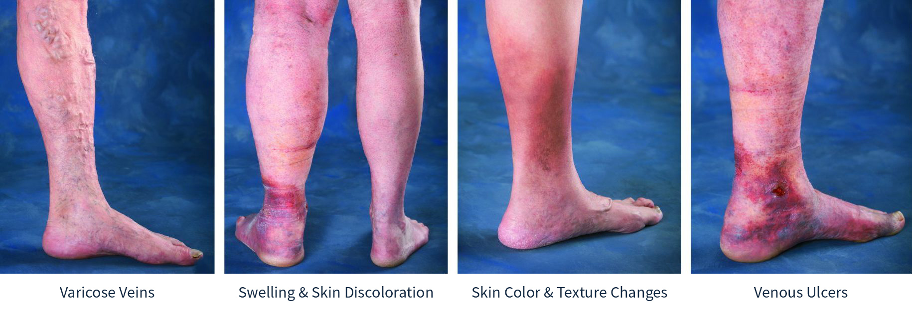 Vein Disease Progression